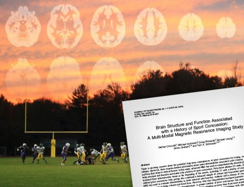 Football Field with Brain trauma scan overlay